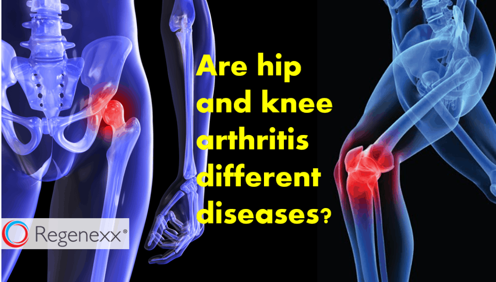 hip vs knee arthritis